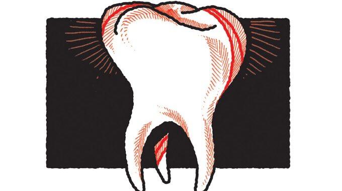 Um grande problema e uma solução viável para a saúde bucal dos brasileiros